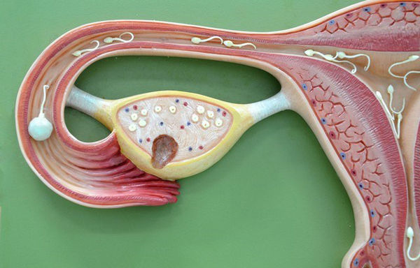диагностика проходимости маточных труб